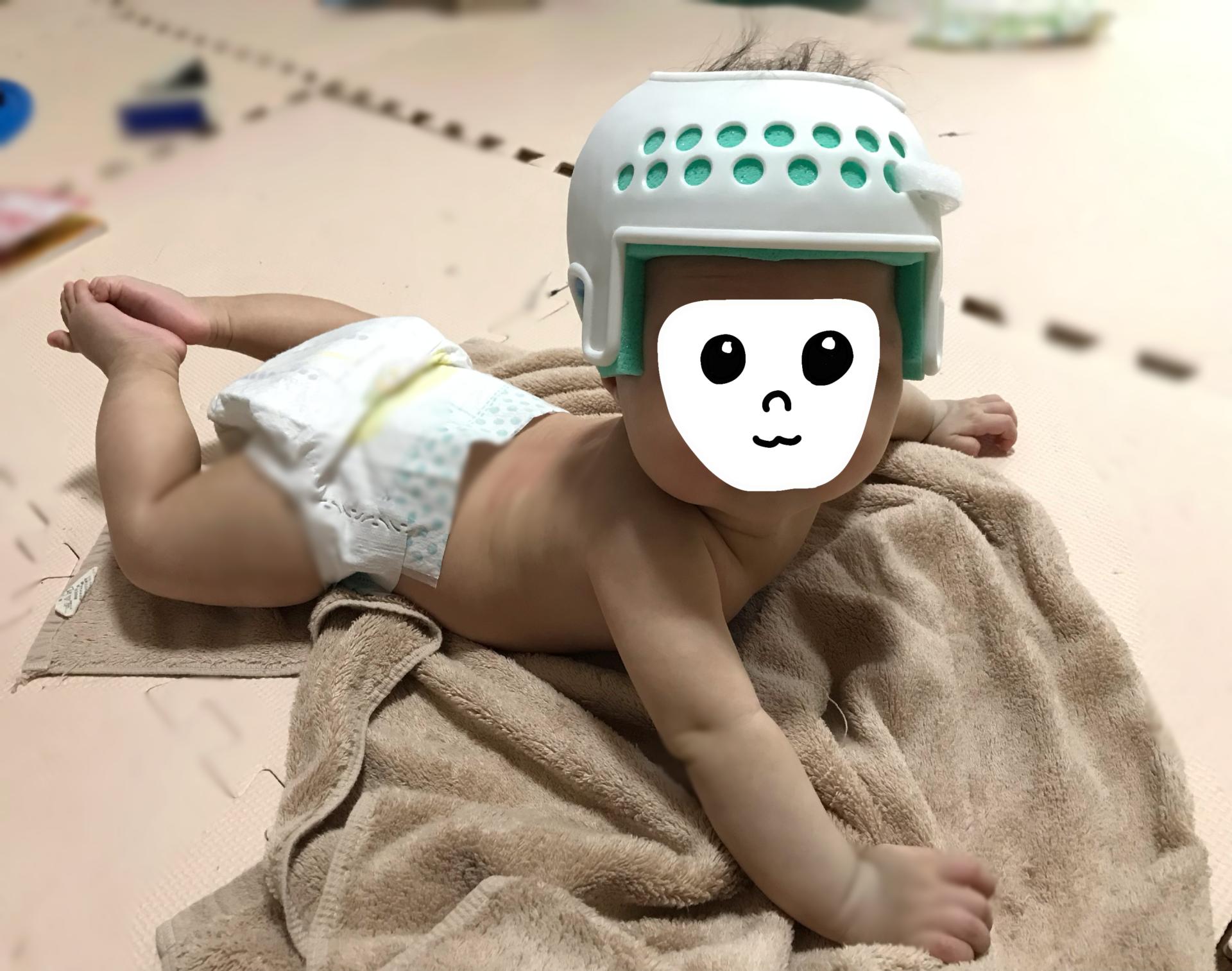 生後5か月ヘルメット装着