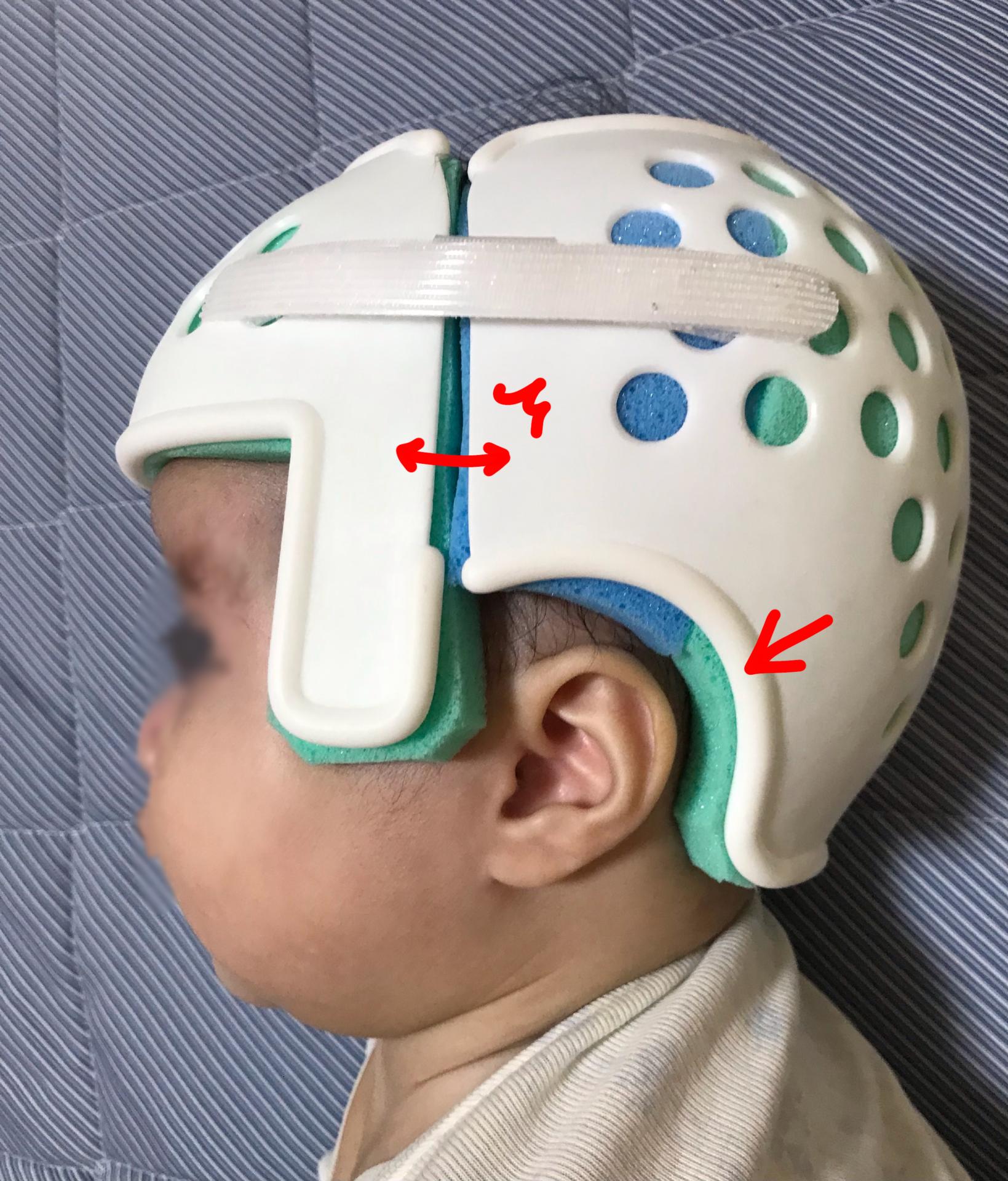 短頭絶壁頭ヘルメット矯正装着注意点