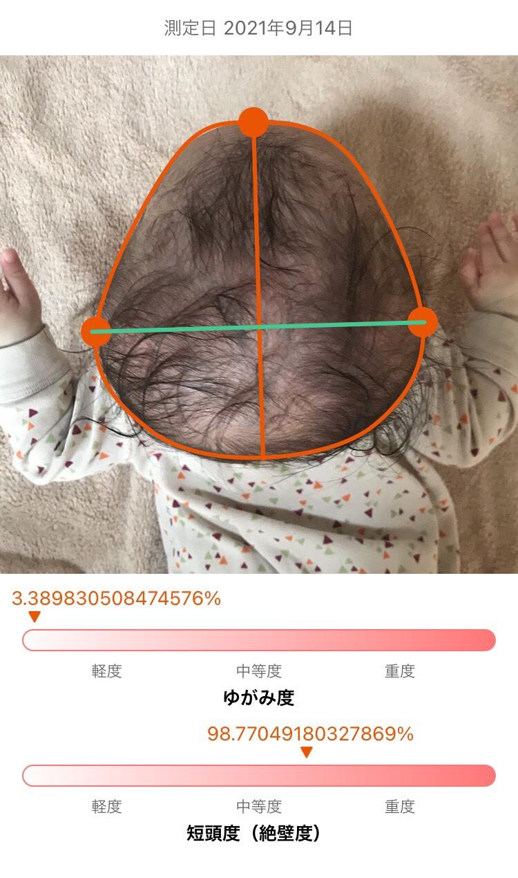 短頭絶壁頭ヘルメット矯正1か月